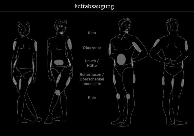Fettabsaugen Fettabsaugung In Frankfurt Kosten Methode Facts